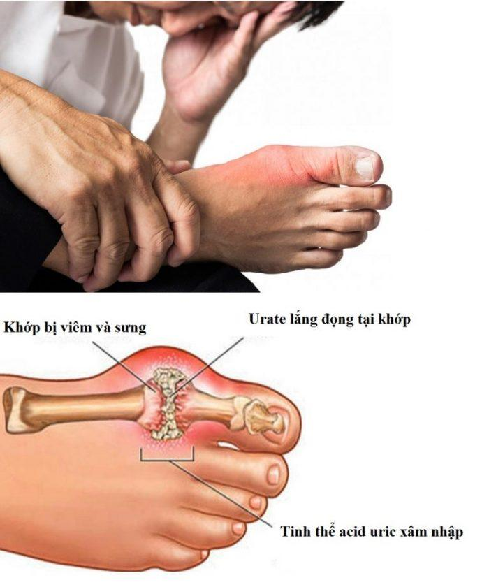 gout ,sản phẩm trị gout organic365